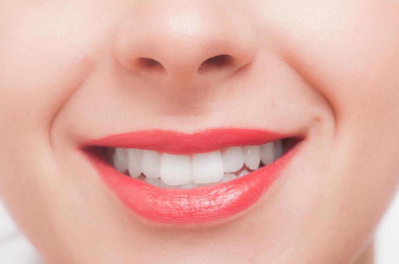 横浜の矯正歯科がおすすめ、矯正治療中には歯のクリーニングを